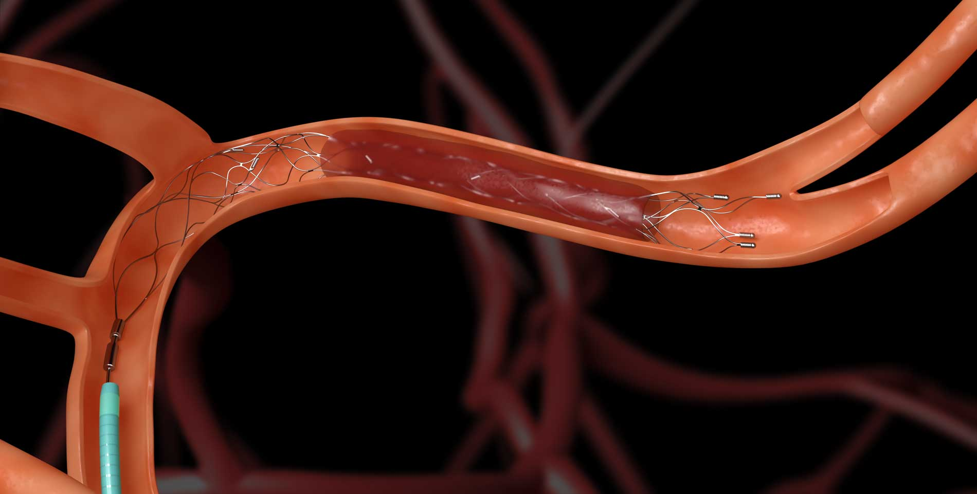 Mechanische Thrombektomie mit einem Stent-Retriever