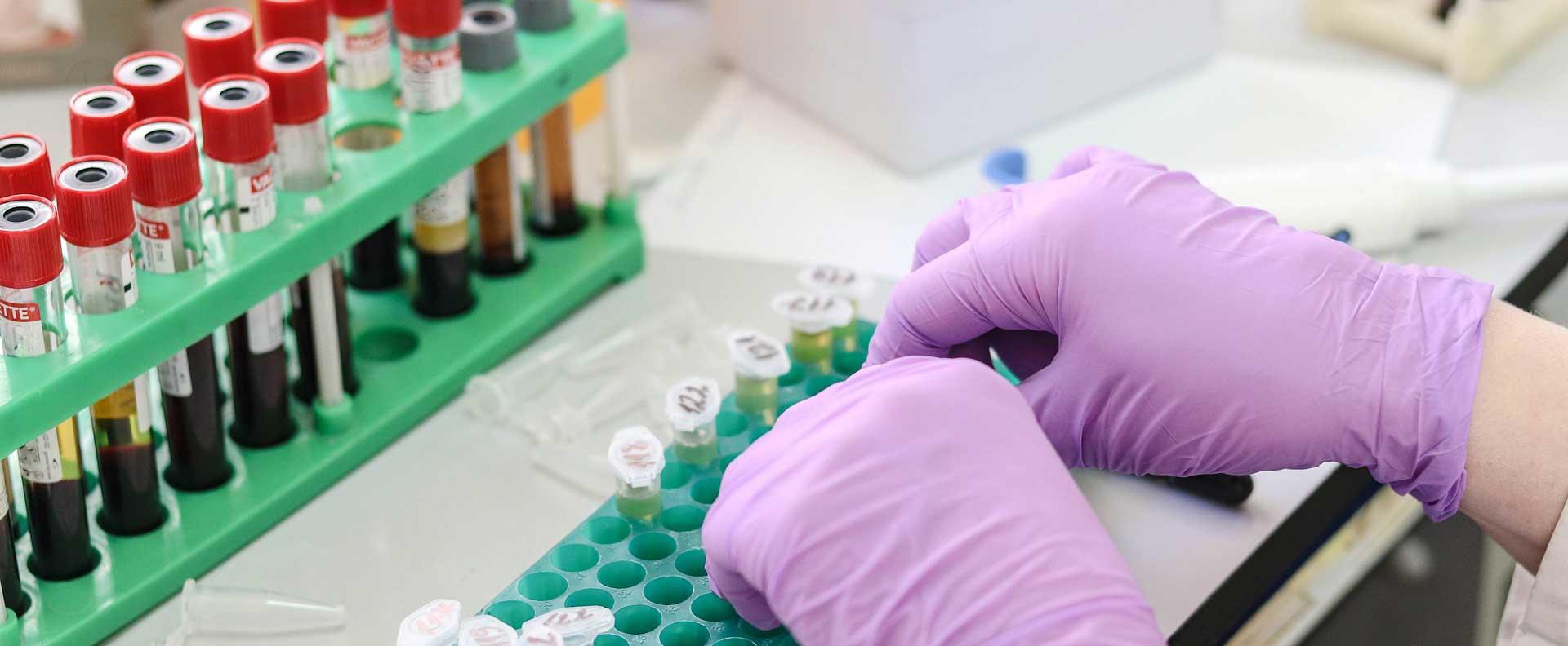 Ein hoher LDL-Cholesterin-Spiegel fördert die Entstehung einer Arteriosklerose
