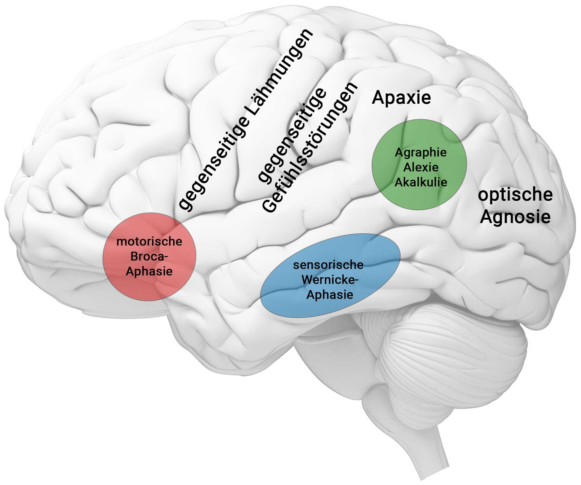 hirn neuropsychologische symptome