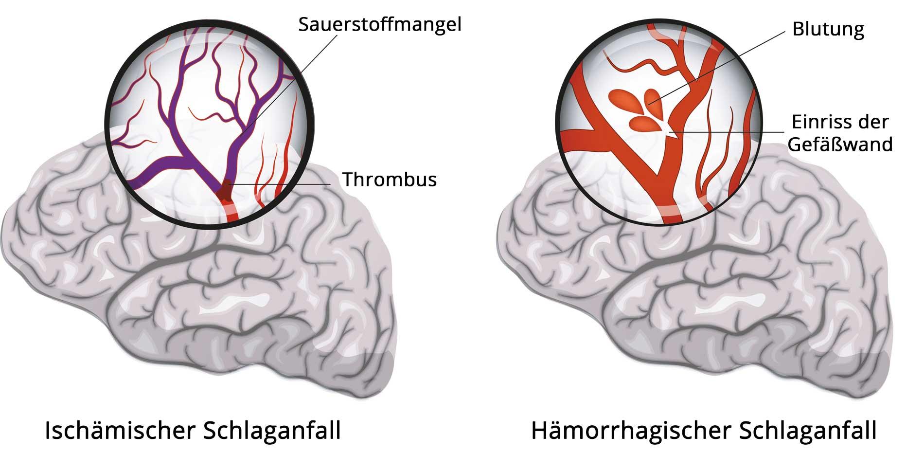 Hirninfarkt (links) und Hirnblutung (rechts)