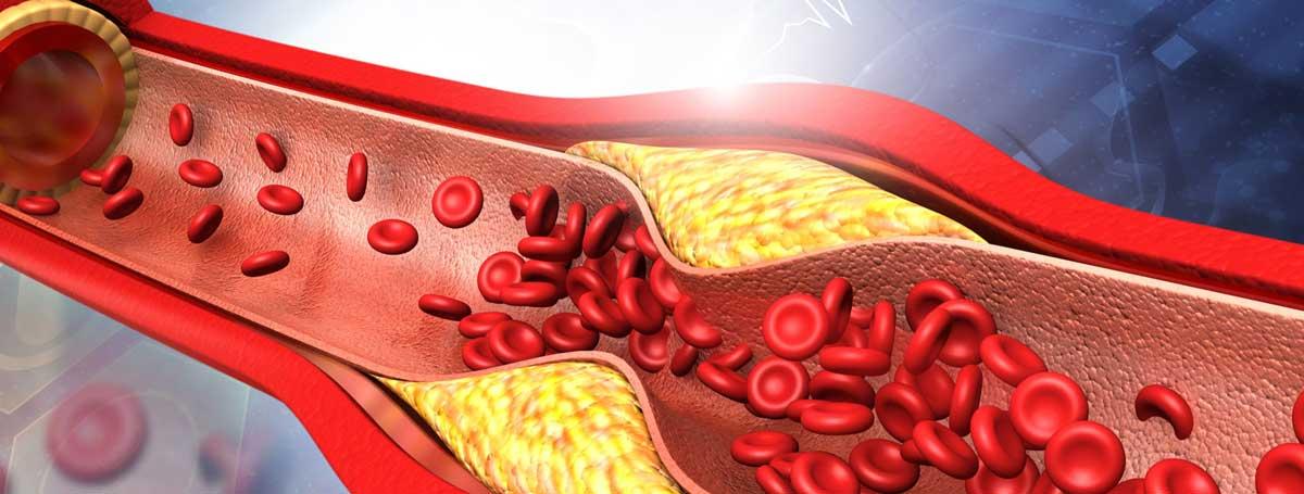 Die Arteriosklerose stört den Blutfluss