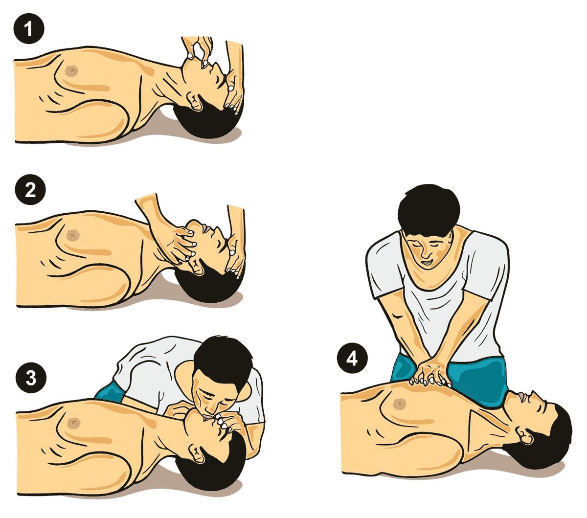 Herzdruckmassage und Beatmung
