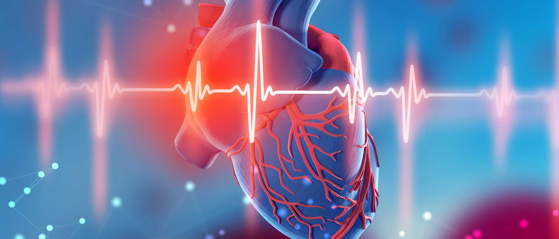 Herzinfarkt und Schlaganfall